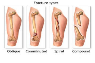 Fracture Types